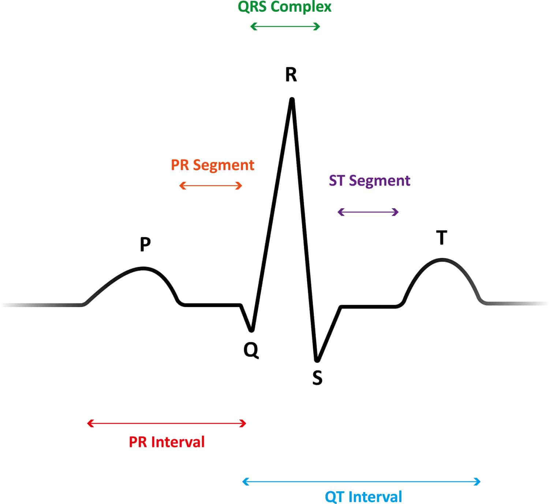5-Lead ECG