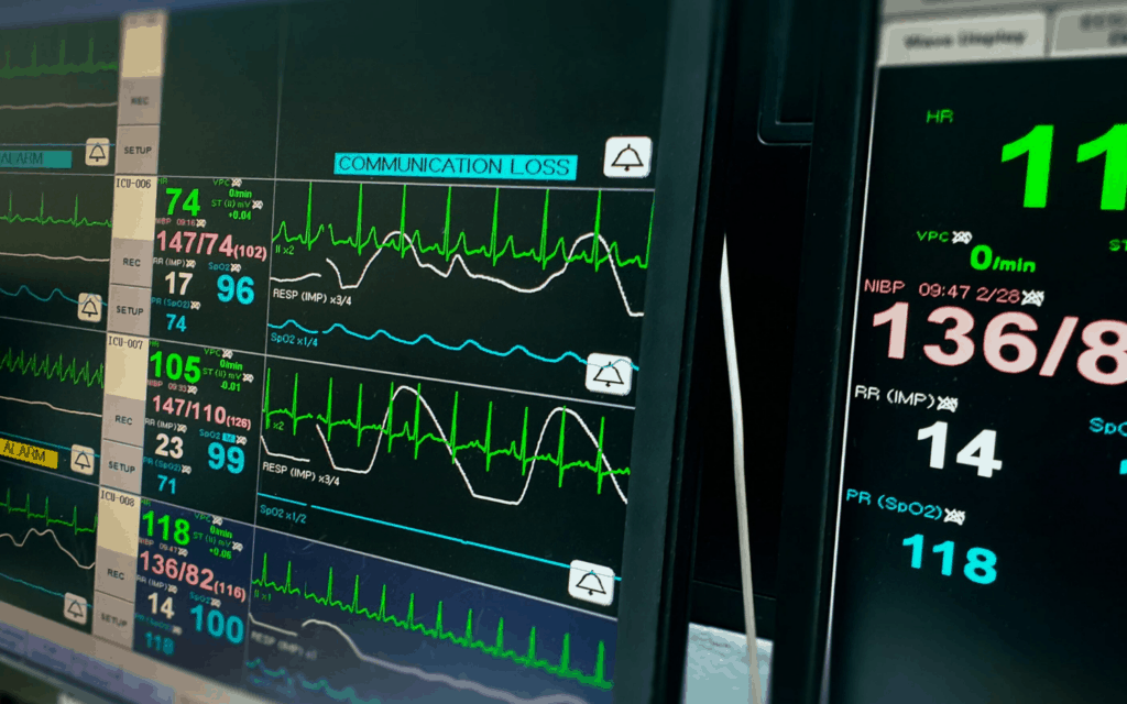 How to Manage Atrial Fibrillation with Rapid Ventricular Response: Tips for Nurses
