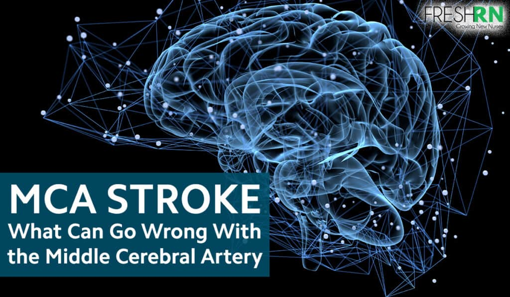 MCA Stroke - What Can Go Wrong with the Middle Cerebral Artery