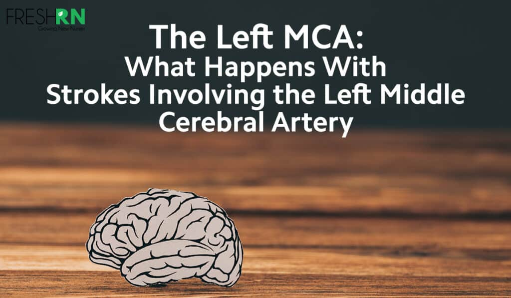 Left MCA Strokes: What Happens With Strokes Involving the Left Middle Cerebral Artery