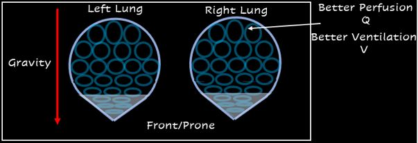 What is the Prone Position Used For?